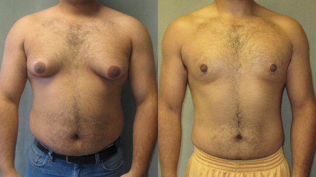 Вид груди мужчины до и после мастэктомии