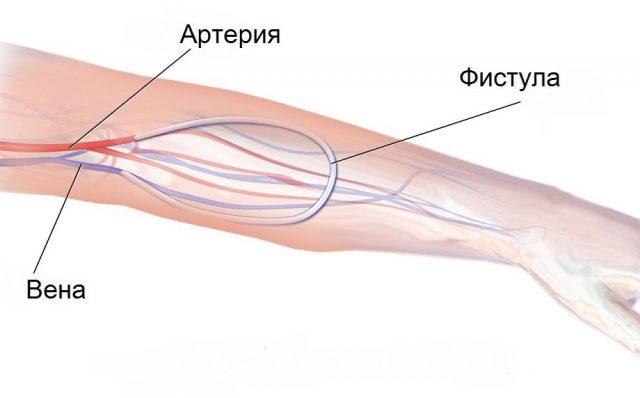 Артериовенозная фистула (схема)