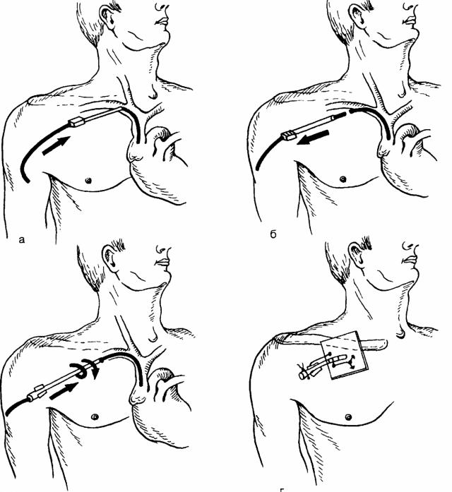 Катетеризация подключичной вены (схема)
