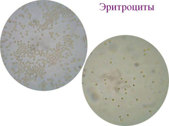 Эритроциты в осадке мочи под микросокопом