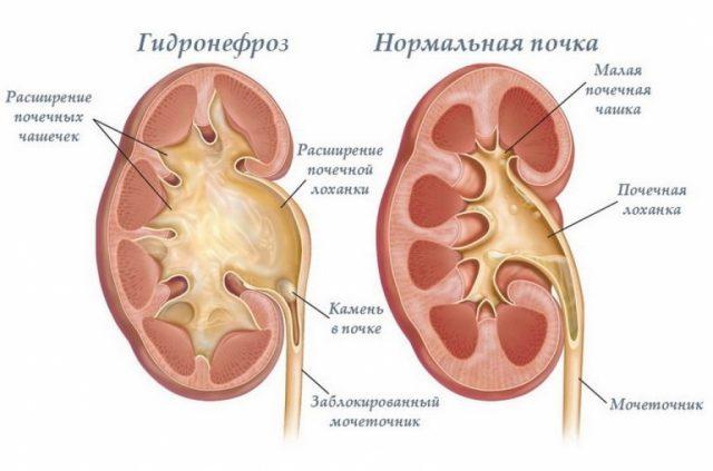 Нормальная почка и поражённая гидронефрозом
