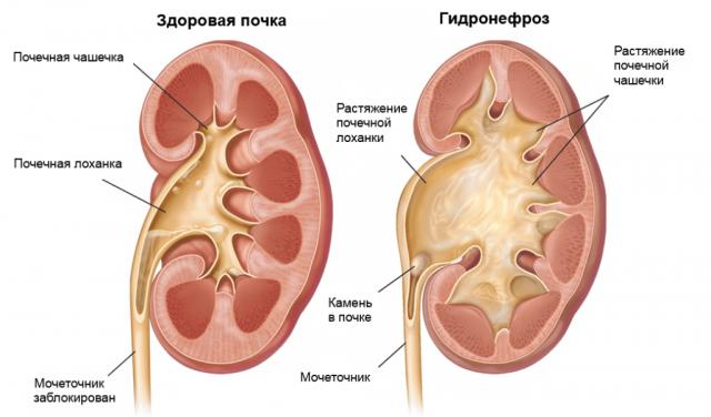 Гидронефроз и здоровая почка