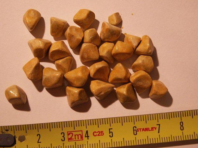 Цистиновые камни в почках