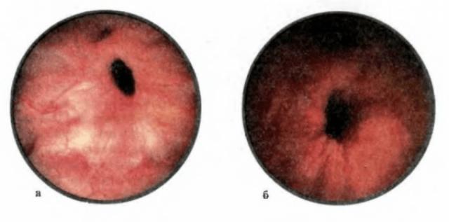 признаки простатита покраснение губок уретры
