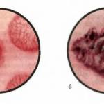 Опухоли мочевого пузыря