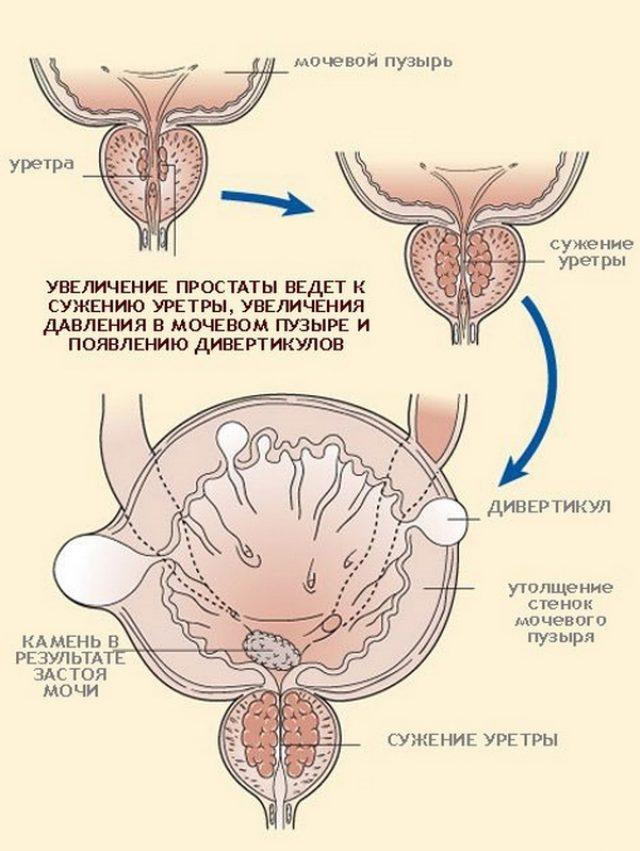 Патогенез дивертикула мочевого пузыря