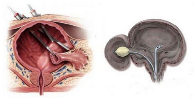 Методы операции по удалению дивертикула мочевого пузыря