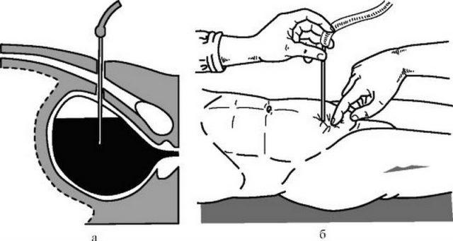 Чрезкожная надлобковая катетеризация мочевого пузыря