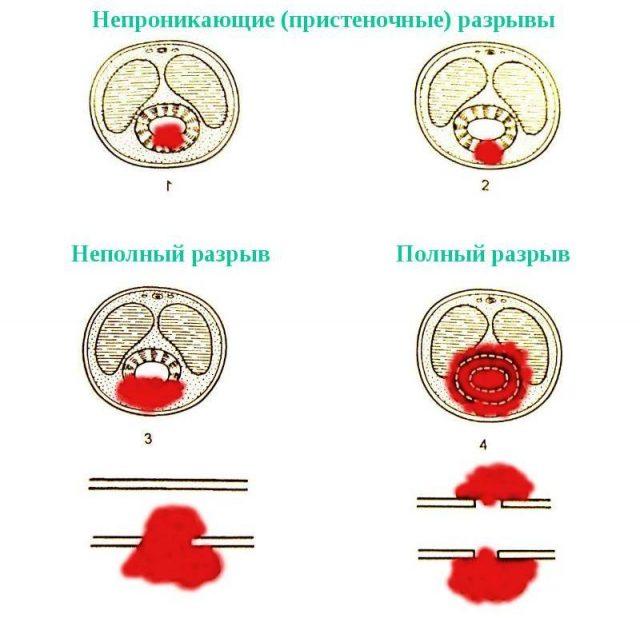 Перфорация уретры