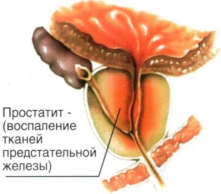 Заболевание простатита и последствия как лечится абактериальный простатита