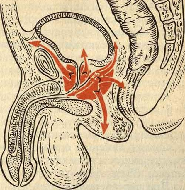 простатит связь с кишечником