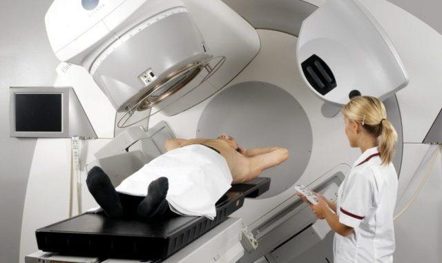 Проведение лучевой терапии при раке мочевого пузыря