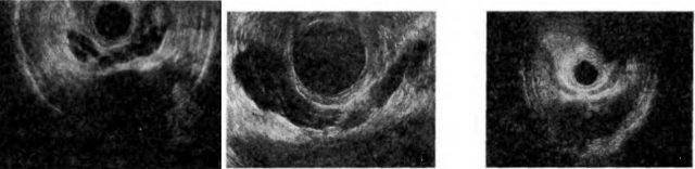 Признак «бычьих рогов» на УЗ-сканограммах
