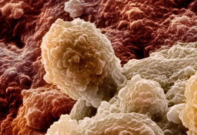 Переходно-клеточный рак мочевого пузыря под микроскопом