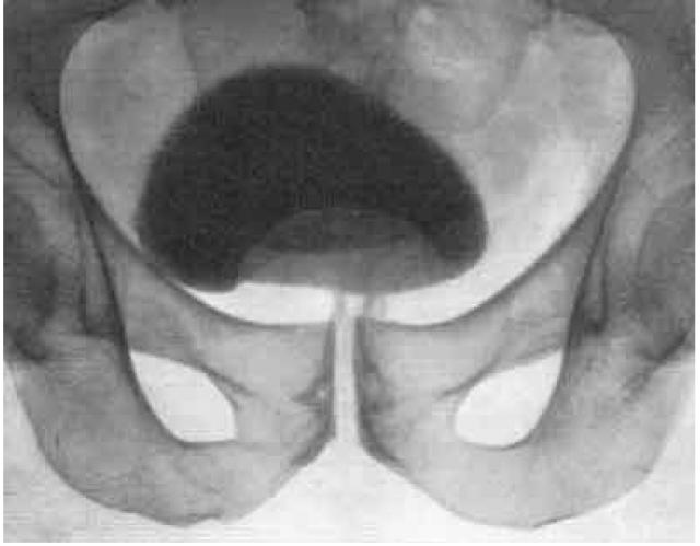 Урограмма мочевого пузыря при опухоли простаты