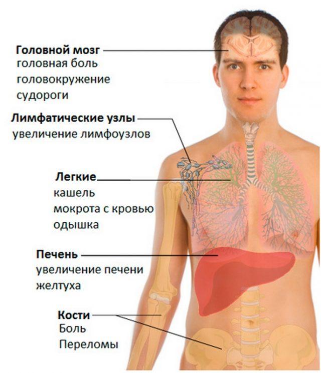 Метастазы рака мочевого пузыря