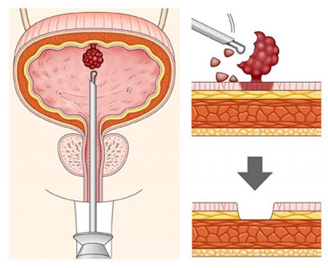 Резекция уротелиальной карциномы