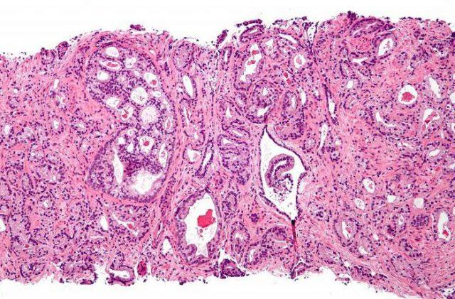 Аденокарцинома (картина под микроскопом)
