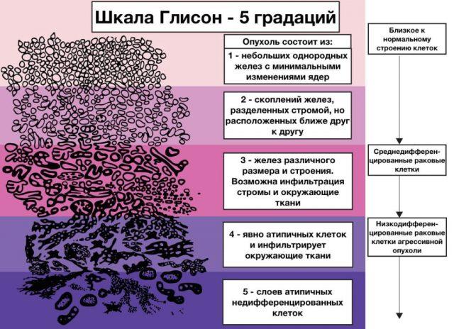 Шкала Глисон (схема)