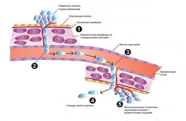 Схема метастазирования раковой опухоли