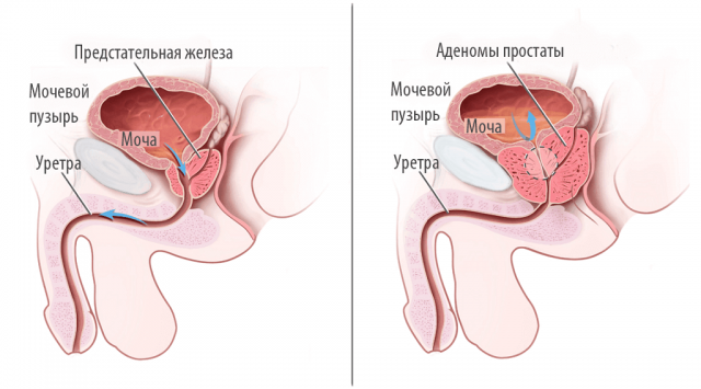Аденома простаты (схема)