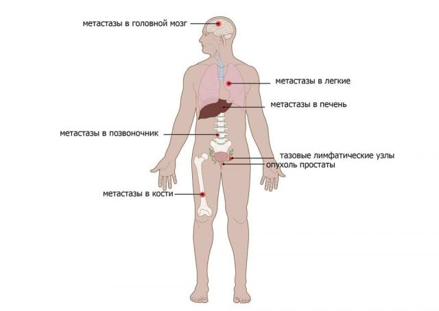 Метастазы рака простаты (схема)