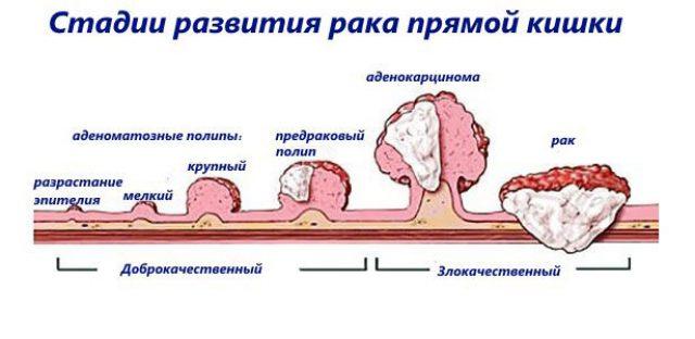 Рак прямой кишки (схема)