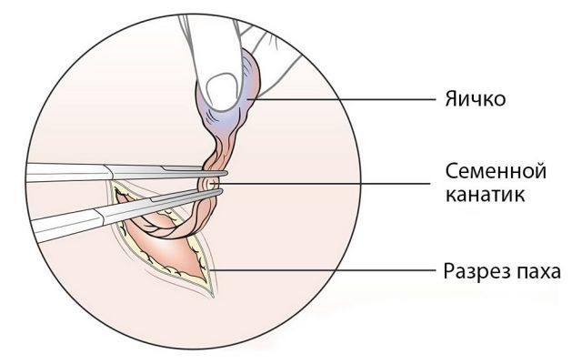 Орхэктомия (схема)