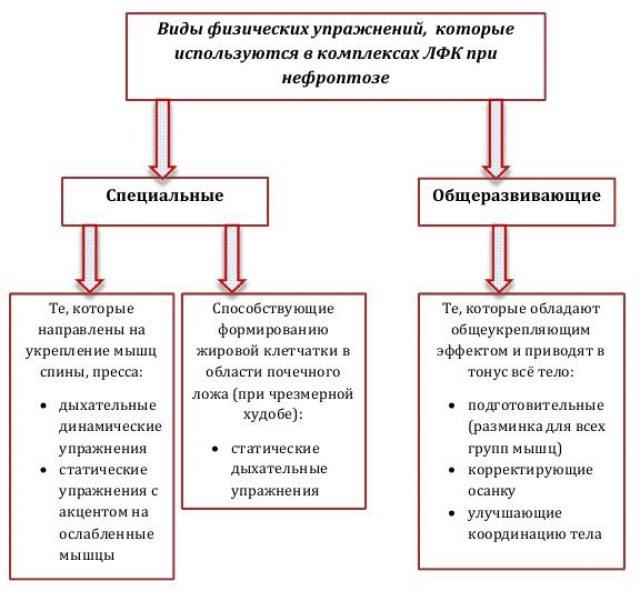 схема видов физических упражнений при нефроптозе