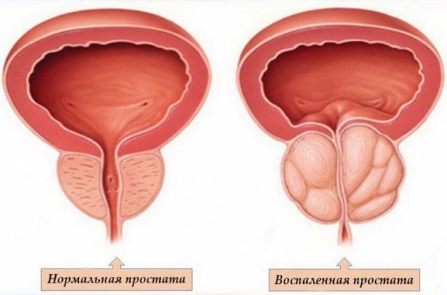Нормальная простата и воспалённая на рисунке