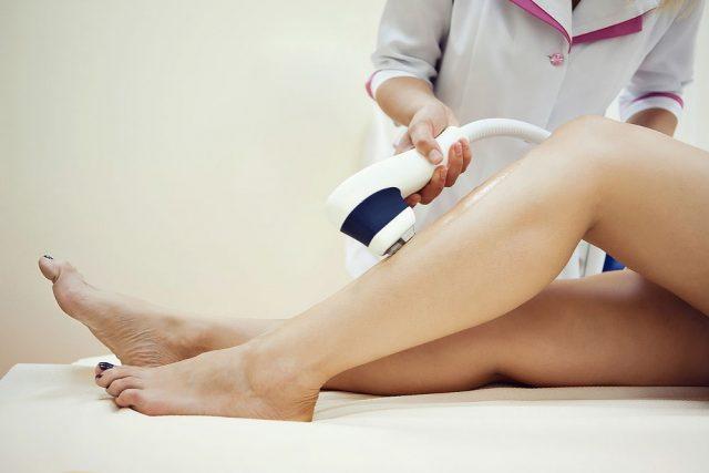 Процесс удаления волос на ногах при помощи лазера