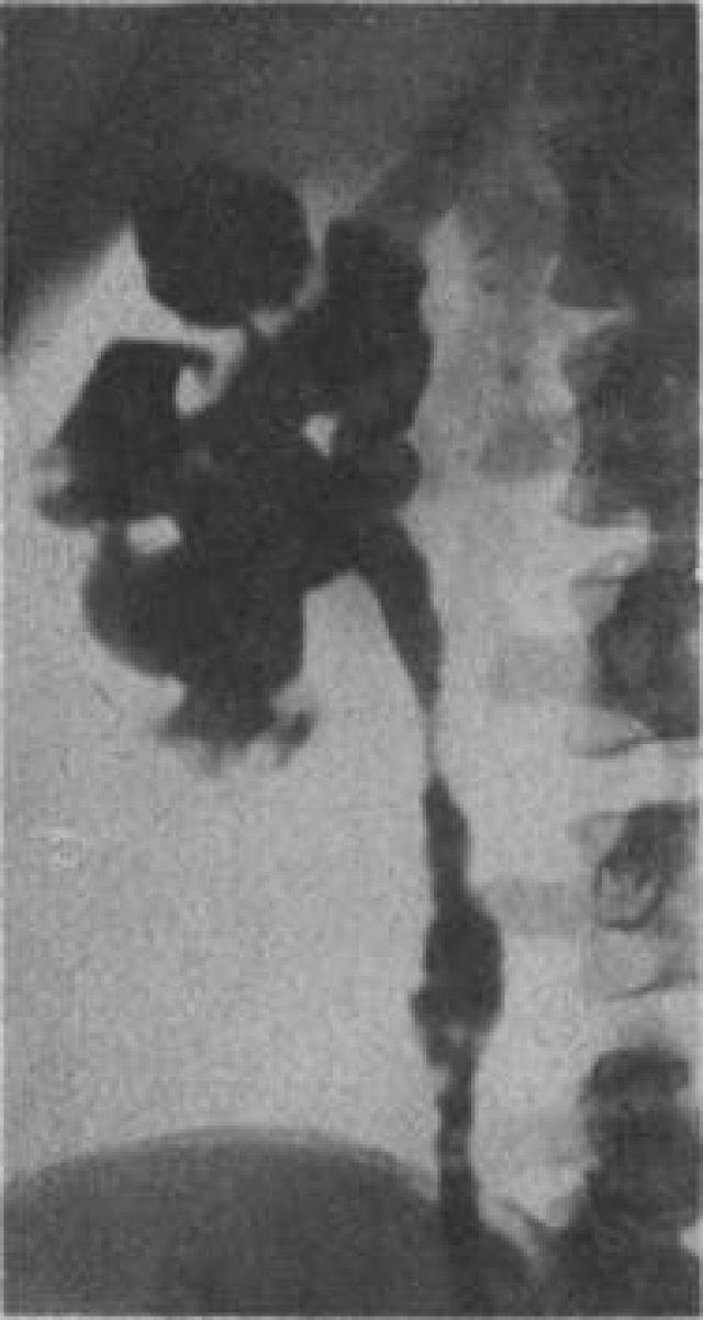 Туберкулёз почки на снимке