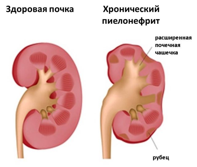 Почка при пиелонефрите и здоровая почка