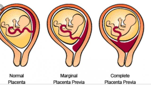 Сравнение нормального, неполного и полного предлежания плаценты