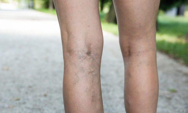 Пример варикозного расширения вен на ногах во время беременности