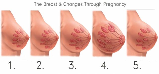 Изменениея молочной железы во время беременности