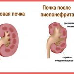 Здоровая почка и орган при пиелонефрите