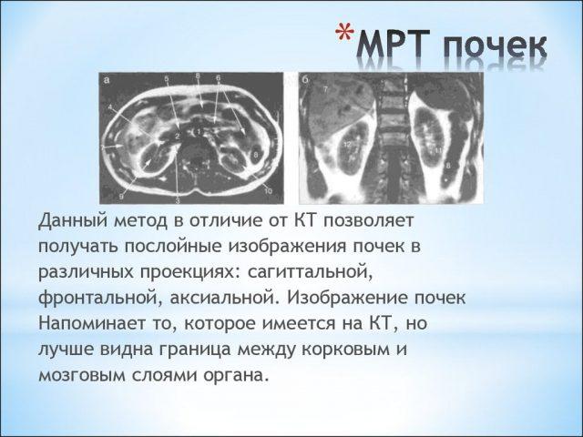 МРТ почек