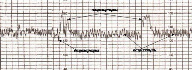 график сердцебиения плода на КТГ