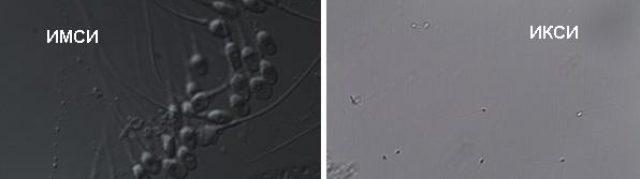 Исследование сперматозоидов при ИКСИ и ИМСИ