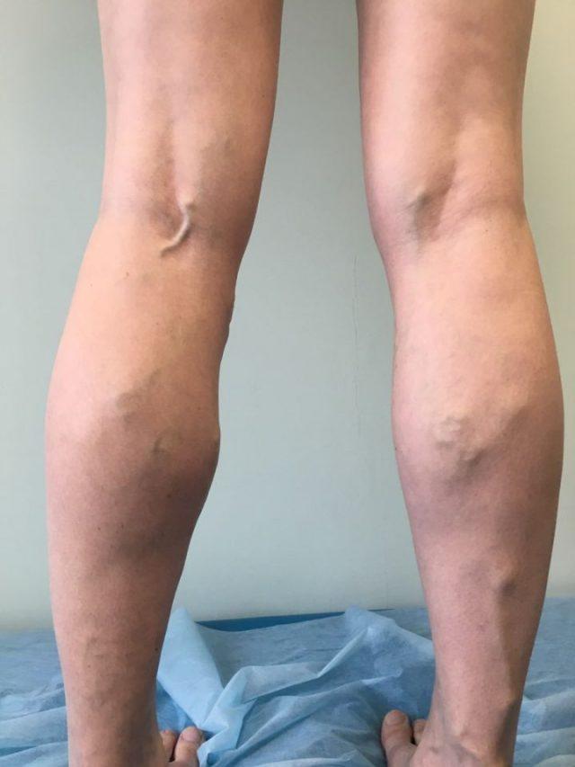 Ноги с выступающими венами