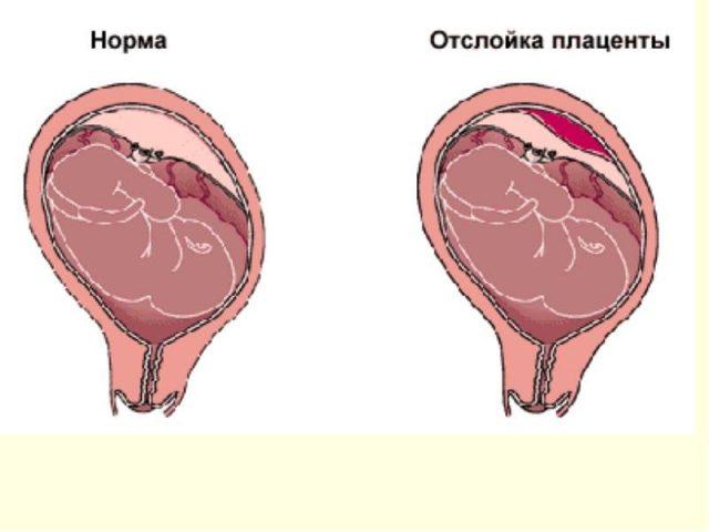 Плацента нормальная и с отслойкой