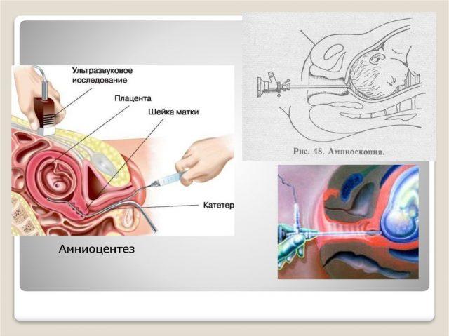 Амниоскопия и амниоцентез
