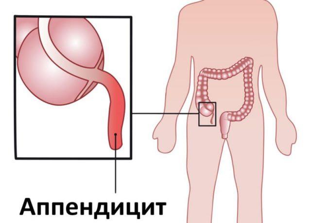 Схема расположения аппендикса
