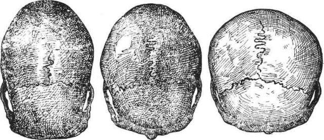 Формы черепа плода, вид серху