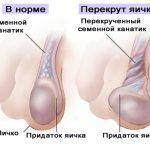 Перекрут яичка и яичко в норме