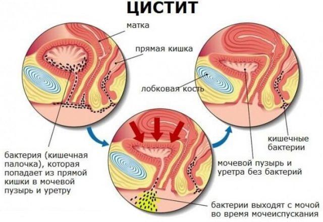 Механизм развития цистита