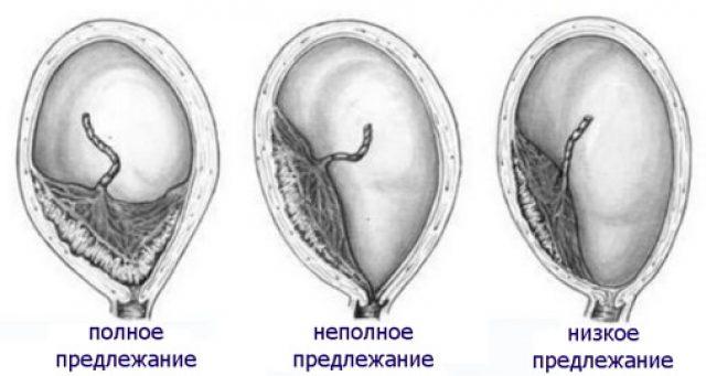 Патологии прикрепления плаценты