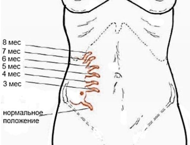 Расположение аппендикса в разные периоды беремености