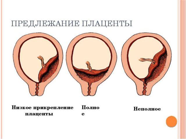 Разные типы предлежания плаценты